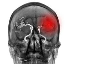 You can have a stroke without knowing it – this is a silent stroke